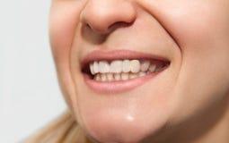 Weibliches Lächeln mit der Zahnkrone der geringen Qualität flacher Farbe, schlechte Form stockfotos
