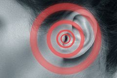 Weibliches Ohr mit Quelle von Schmerz lizenzfreies stockbild