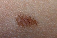 Weiche Wunden auf der Haut Stockbilder