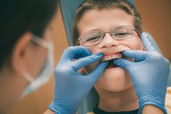 Weinig jongen bij de tandarts Royalty-vrije Stock Afbeeldingen