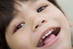 Weinig jongen met een varkenskot bij oog het glimlachen stock afbeelding