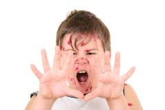 Weinig jongen is ziek met waterpokken stock afbeeldingen