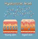 Wektorowa ilustracja z procesem dostawać skórę stara przez braka hyalurowy kwas ilustracji