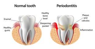 Wektorowa wizerunku zębu Periodontitis choroba Obrazy Royalty Free