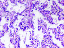 Well differentiated adenocarcinoma of a human Stock Images