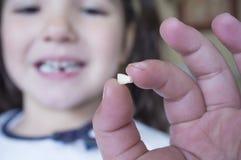 Wenig 5 Jahre alte Mädchen, die ihren ersten Milchzahn herausgefallen zeigen Lizenzfreie Stockbilder