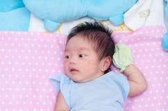 Wenig neugeboren mit vielen Hautausschlag auf Gesicht stockbilder