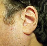 Wer Ohr ist das? lizenzfreies stockfoto