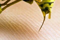 Wespe, die einen Menschen sticht stockfotografie