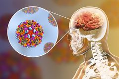 Western equine encephalitis, medical concept. 3D illustration showing brain infection and close-up view of Western equine encephalitis viruses Royalty Free Stock Photo