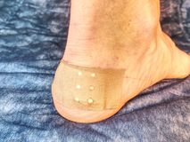Wet bloody painful skin on man foot with adhesive plaster.. Achilles heel royalty free stock photo