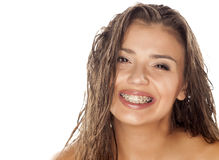 Wet hair and braces. Young woman with wet hair and braces posing in the studio Stock Photo