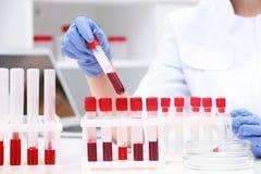Wetenschapper die met bloedmonsters in reageerbuizen werken royalty-vrije stock foto's
