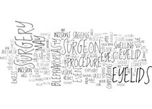 What Is Eyelid Surgery Word Cloud. WHAT IS EYELID SURGERY TEXT WORD CLOUD CONCEPT stock illustration