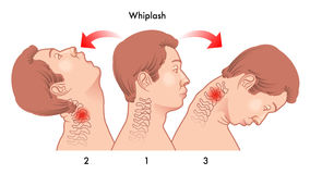 Whiplash injury. Medical illustration of the dynamics of the whiplash injury