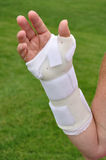 White Arm Brace. Hand with White Plastic Arm Brace Stock Photography