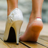 White high heel in one feet and other injured with white little patch. Feet on toe Royalty Free Stock Image