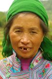 White Hmong woman. The White Hmong settled in the region of Ha Giang in the north of Vietnam. Impoverished region, residents are also very poor. Medical care is Royalty Free Stock Photos