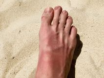 White man foot turned sunburnt red stock photography