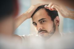 Young Man Applying Lotion For Alopecia And Hair Loss Treatment. White metrosexual man worried for alopecia, applying lotion for hair growing. Young person royalty free stock image