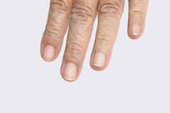 White spots on elderly fingernails. Caused by a calcium deficiency stock photography
