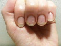 Spring avitaminosis of nails royalty free stock photography