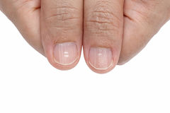 White spots and Vertical ridges on the fingernails. Symptoms deficiency vitamins stock images