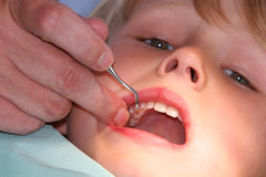 White teeth. A young boy at the dentists, dentist taking a look into his mouth using various tools Stock Photo