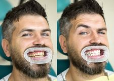 White teeth - before and after concept. Close-up detail of man teeth before and after whitening. Result of teeth stock image