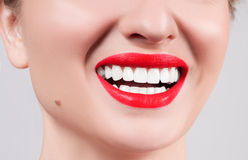White teeth and red lips.  Perfect female smile after whitening teeth. White teeth and red lips. Perfect female smile after bleaching. Dental care and whitening Stock Image