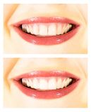 White teeth wide smile. Image of before and after whitening teeth Royalty Free Stock Photography