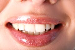 White tooths Royalty Free Stock Images