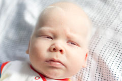 Whitehair babyboy with albinism syndrome Royalty Free Stock Photos