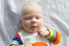 Whitehair babyboy with albinism syndrome Royalty Free Stock Image