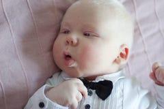 Images Albinisme - Téléchargez 723 Photos libres de droits