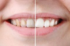 Whitening or bleaching treatment ,before and after ,woman teeth and smile, close up,  on white royalty free stock images