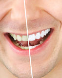Whitening do dente Fotografia de Stock