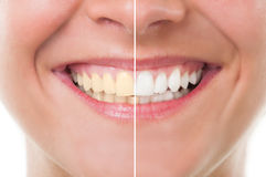 Before and after whitening Royalty Free Stock Photography