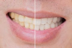 Whitening teeth laser bleach in male man tooth compare before af stock image