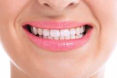 Whitening teeth Stock Image