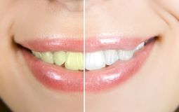 Whitening Stock Photo