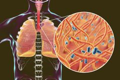 Whooping cough bacteria Bordetella pertussis in human airways. 3D illustration stock illustration