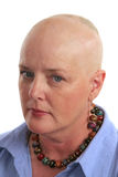 Why Me?. A cancer survivor undergoing chemotherapy looking scared and unhappy Royalty Free Stock Photo
