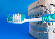 Why to clean your teeth Stock Image