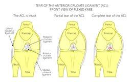 Wiązadła knee_Tear anterior cruciate wiązadło Fotografia Royalty Free