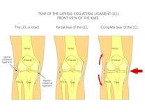 Wiązadła knee_Tear lateral drugorzędny wiązadło Obrazy Stock