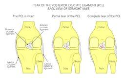 Wiązadła knee_Tear posterior cruciate wiązadło Obrazy Stock