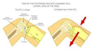 Wiązadła knee_Torn posterior cruciate wiązadło Zdjęcie Royalty Free
