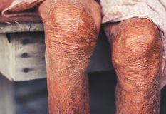 Więdnący kolano stara kobieta, więdnąca dębna skóra Fotografia Stock