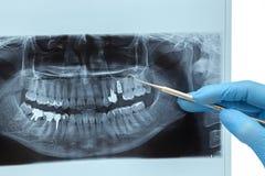 wiązka dentystyczne x Zdjęcie Royalty Free